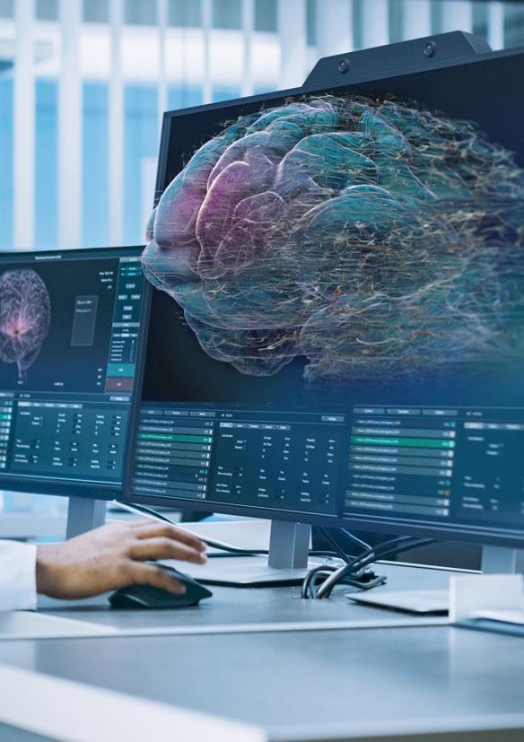ZVIEW Medizin 3D Gehirn